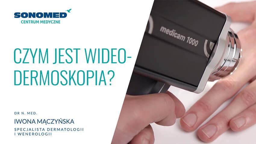 Czym jest wideodermoskopia?