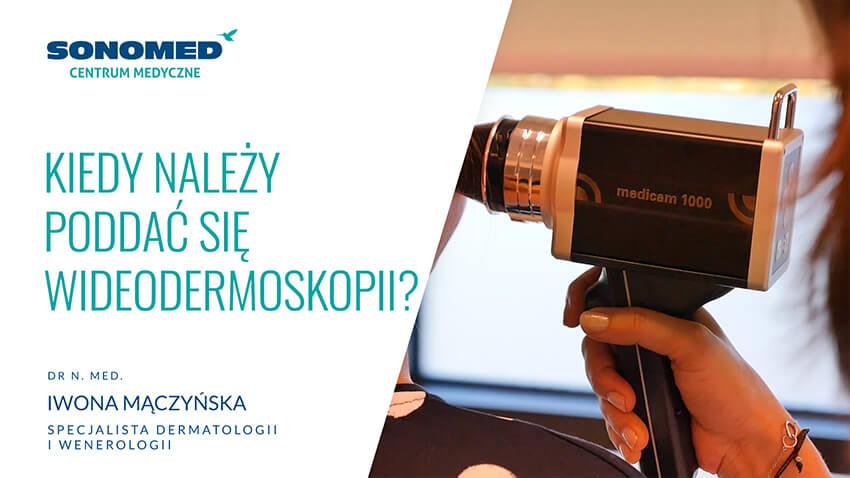 Kiedy należy poddać się wideodermoskopii?