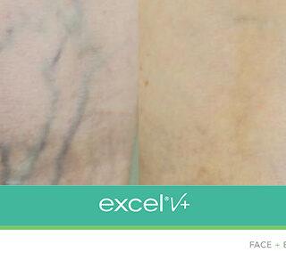 Laser Cutera Excel V+ Szczecin