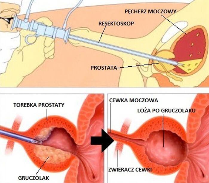 Przezcewkowa  elektroresekcja stercza – TURP (ang. Transurethral resection of the prostate)